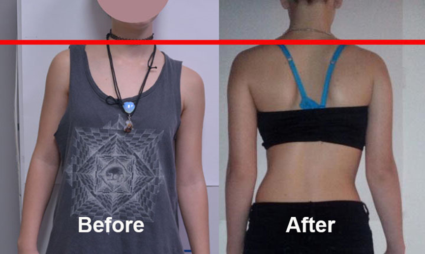 Scoliosis Treatment New York City